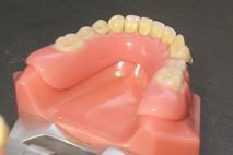 appareil dentaire molaire