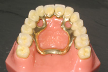 prothèse dentaire amovible stellite